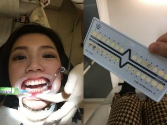 20160124 Dentist Day-001